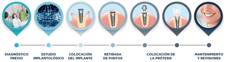 Pasos implantes   Integramedica